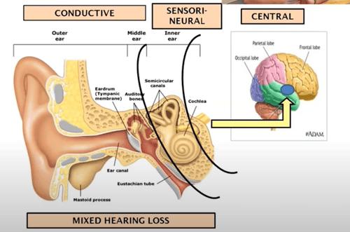 3 types of hearing loss