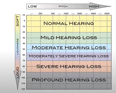Hearing Loss Degree