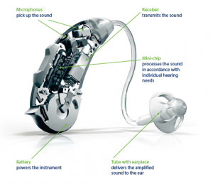 The various parts in a hearing aid