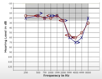 Pure noise induced hearing loss