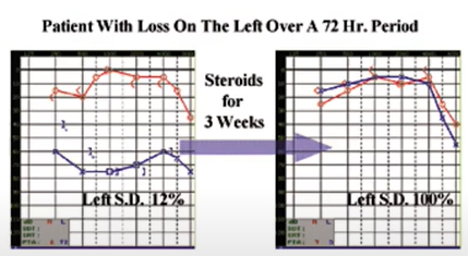 SSD treatment with steroids hearing recovery